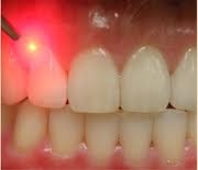 dentiste-laser